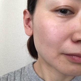ハリ効果絶大の美容液『セラムラフェルミサンS』_1_5