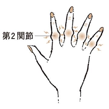"""5. 第2関節がこぶ状に膨らむ """"ブシャール結節""""【50代のお悩み・更年期の手指問題】"""