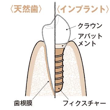 本当の歯のように噛めて顎骨も維持できるのが利点