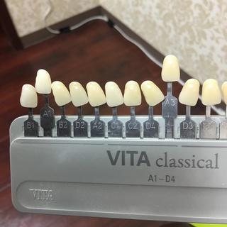 歯のホワイトニングをはじめました!