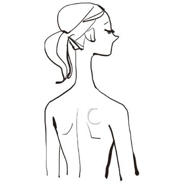 【皮膚のできもの⑥】背中、肩、首などにできる柔らかいできもの「脂肪腫」
