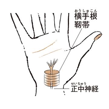 """3. 人さし指や中指などがしびれる """"手根管症候群""""【50代のお悩み・更年期の手指問題】"""