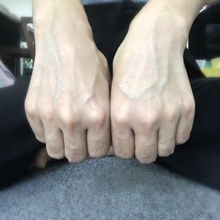 【アンチエイジング医療UPDATE その③】手の甲のアンチエイジング