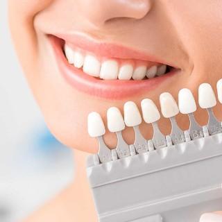 アラフォー女性の9割が「歯の黄ばみ」が気になっている! 歯のホワイトニングをしている人の割合は?