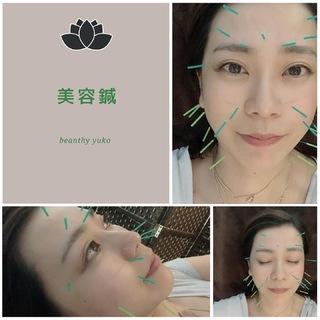 マスクの中で疲れのお肌に美容鍼という選択